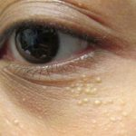milia-spots-under-the-eyes-1474723925686-6-2-287-453-crop-1474724691108